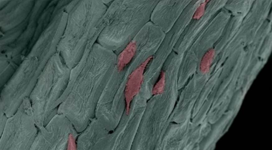 Human skin cells (pink) migrating upon a medical device (green) that was manufactured from a parsley leaf.